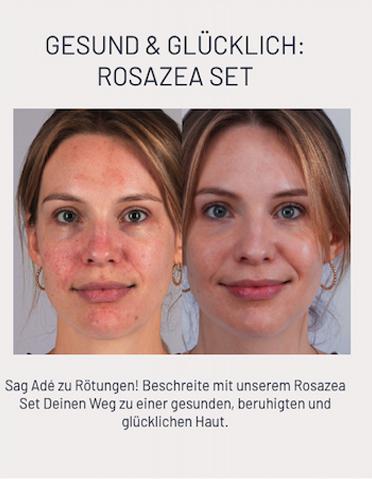 Rosazea
